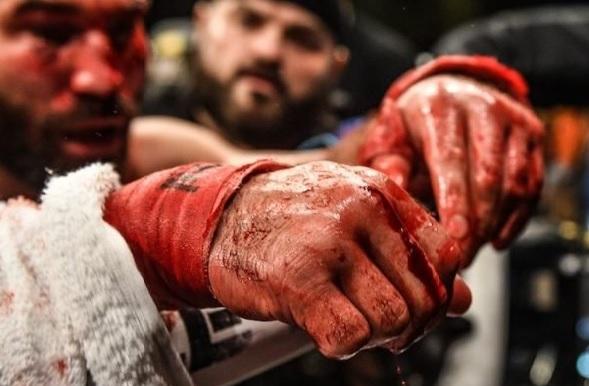 Бои на кулаках без перчаток